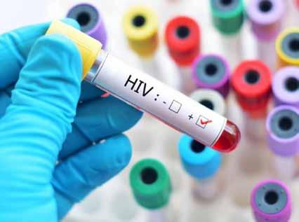 Huíla regista mais de 200 novos casos do viH-Sida